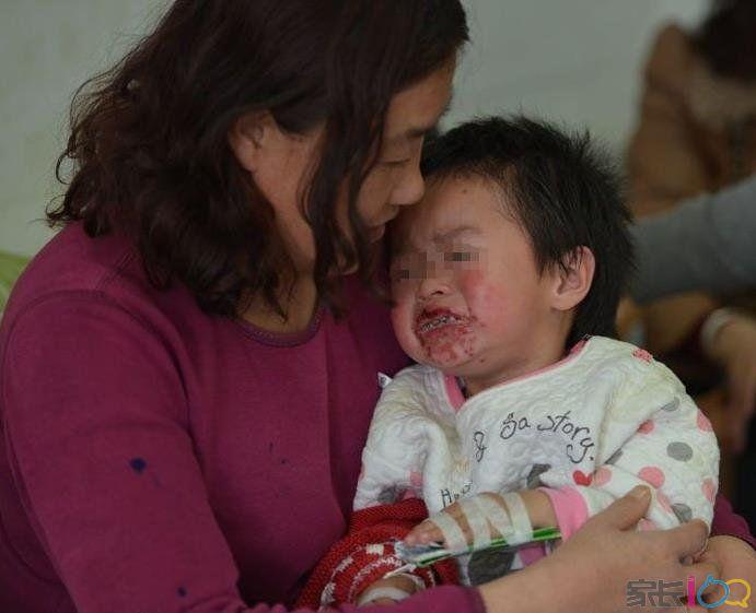 婴幼儿别吃辛辣的东西:两幼童吃辣条致嘴巴溃烂
