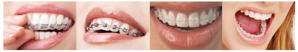 """自信青春,從""""齒""""開始!孩子牙齒問題,這些方法幫你搞定"""